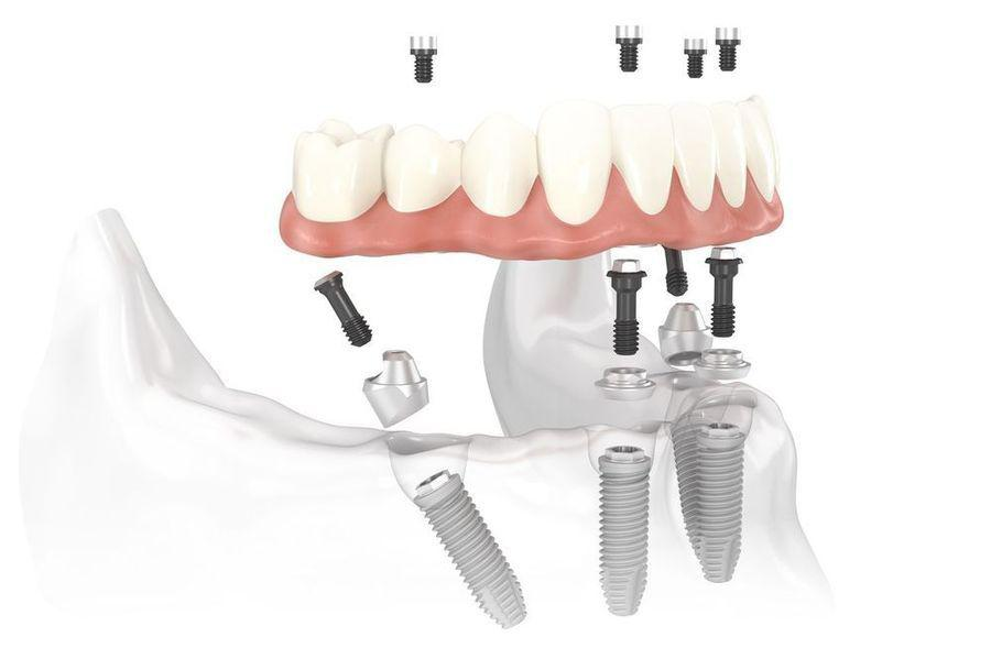 All-on-4 Dental Implants Oklahoma City