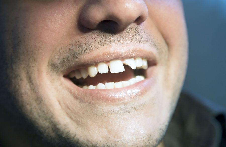 Dental bonding can be sculpted to conceal chips, breaks, and dental stains that detract from your smile.