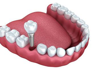 Dental Implants Oklahoma City, OK