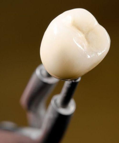 Photo of a dental crown